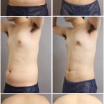 ベイザー脂肪吸引 女性化乳房