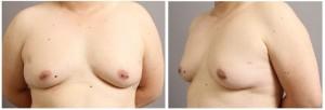 女性化乳房 ベイザー脂肪吸引