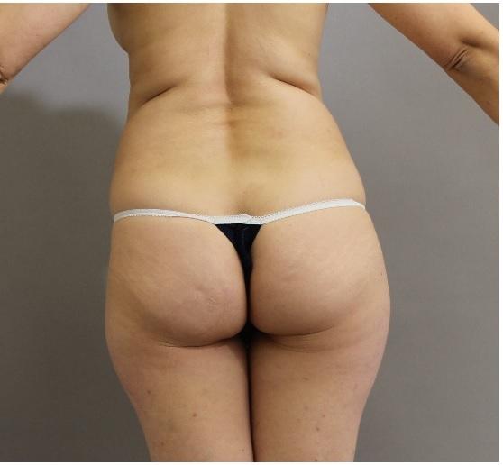 ベイザー脂肪吸引 太もも腰