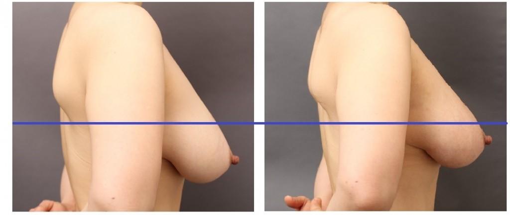 サーミタイト 授乳後