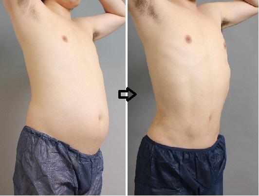 男性 ベイザー脂肪吸引
