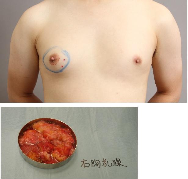 真性女性化乳房
