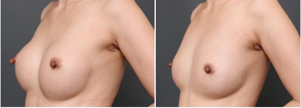 CRF豊胸 乳頭縮小