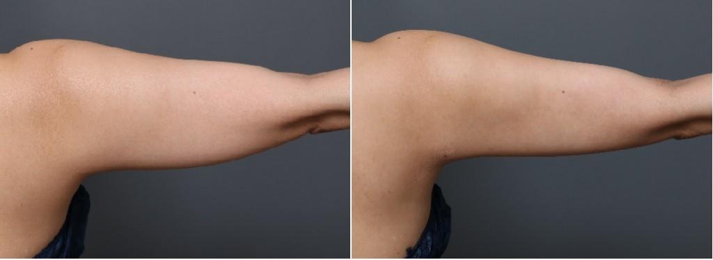 ベイザー脂肪吸引 二の腕