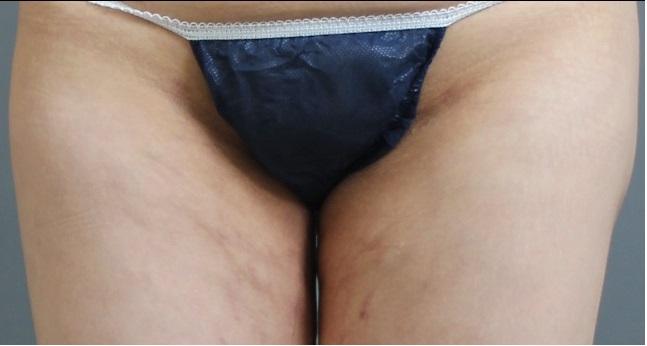 他院脂肪吸引修正 大腿