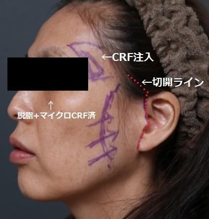 facelift デザイン k