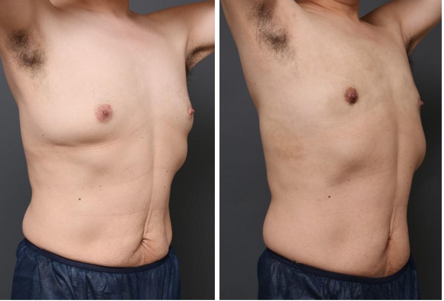 女性化乳房 混合性