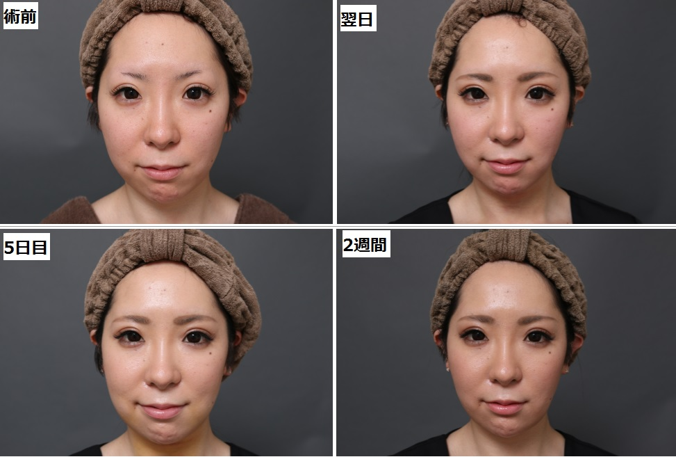 脂肪吸引術後経過-頬顎