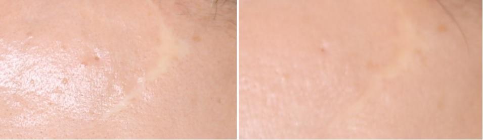 マイクロcrf 瘢痕治療