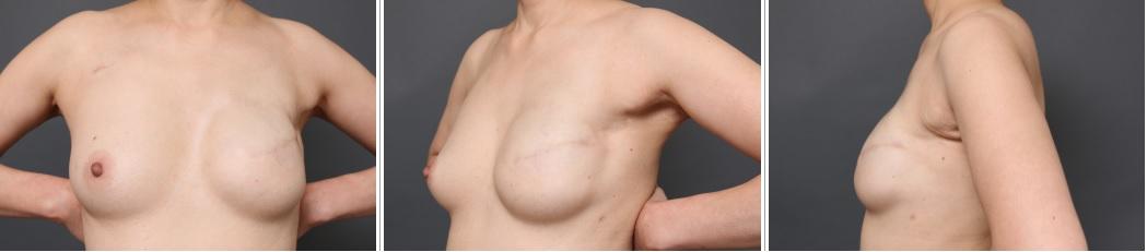 乳癌術後の再建