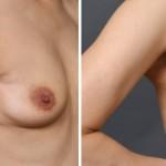 乳癌部分切除後の再建