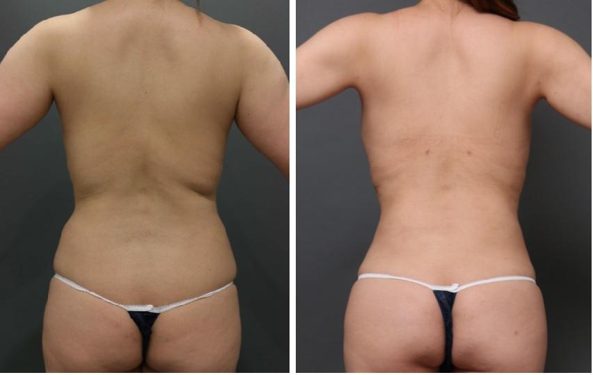ベイザー脂肪吸引 腰背中
