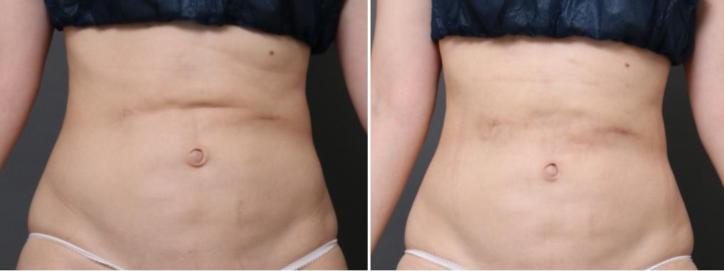 腹部脂肪吸引修正