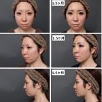 頬と顎の脂肪吸引 経過