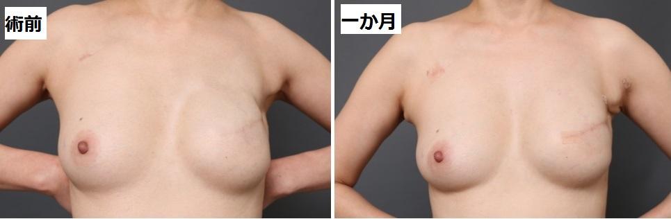 乳癌術後の再建1か月後