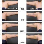 二の腕脂肪吸引 ダウンタイム
