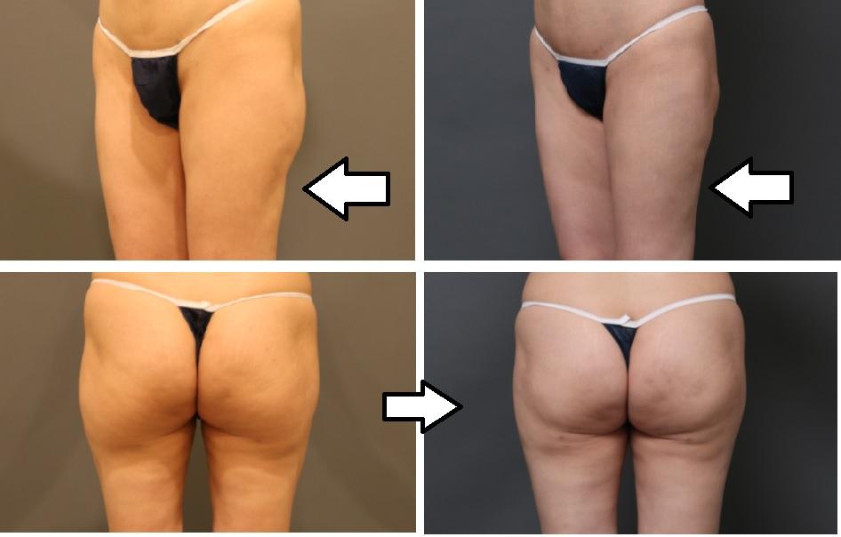 他院での脂肪吸引の修正