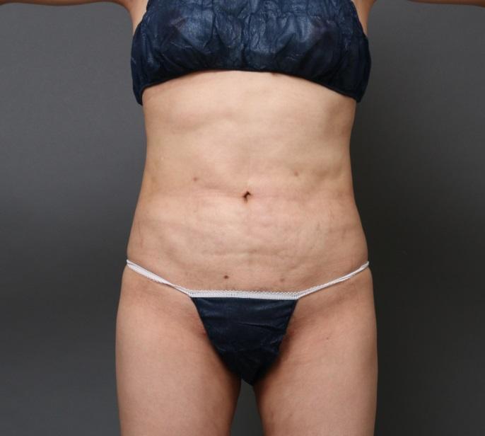 他院脂肪吸引後の修正