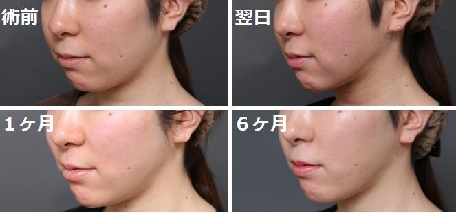 顔の脂肪吸引