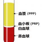 ヒアルロン酸+pppしこり除去