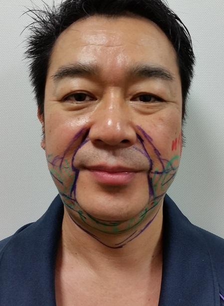 頬顎 ベイザー脂肪吸引