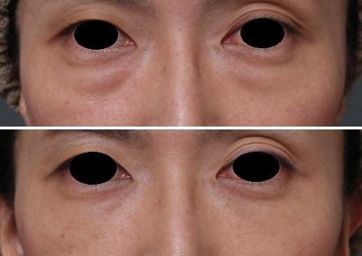 目の下のクマ 脱脂マイクロcrf