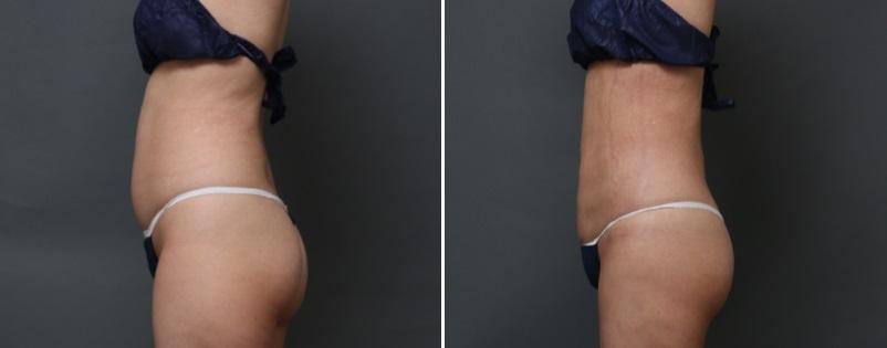 ベイザー脂肪吸引 腹部・腰