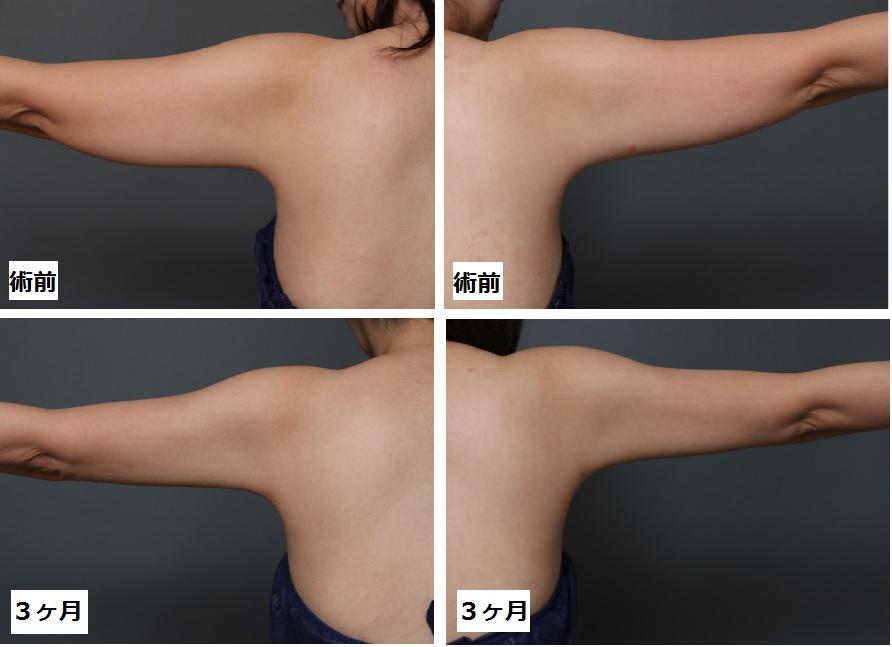 ベイザー脂肪吸引 二の腕・肩