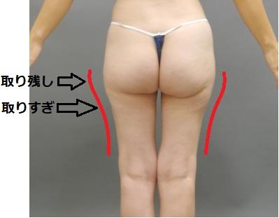 脂肪吸引後の修正