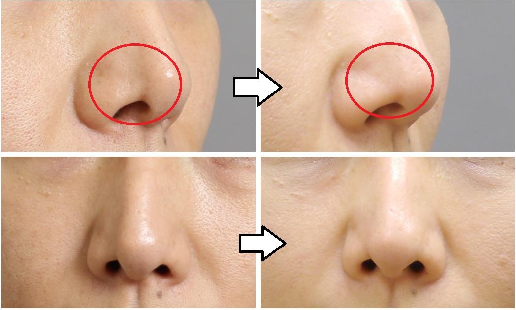 脂肪注入 鼻の修正