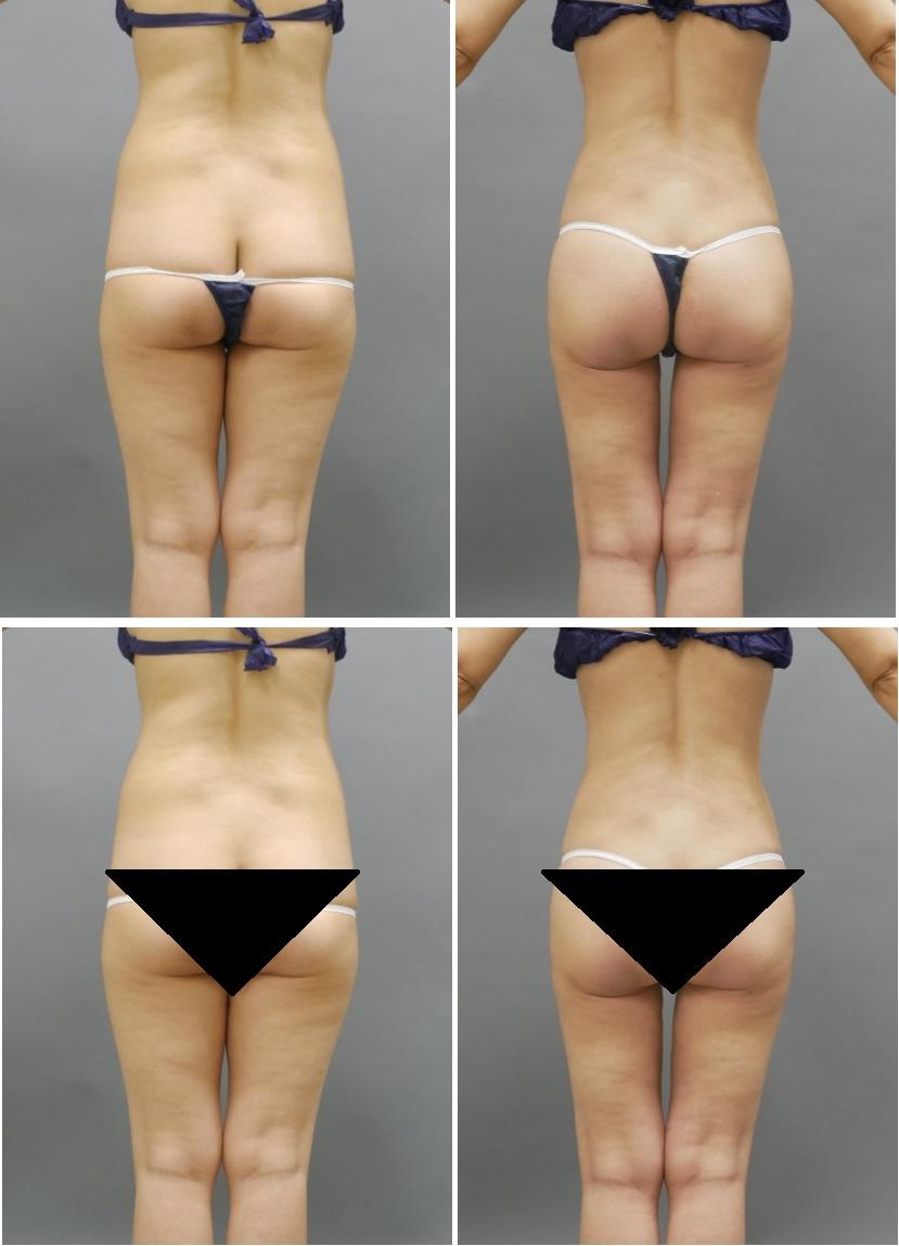 ベイザー脂肪吸引 腰大腿