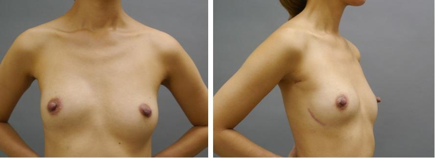 乳癌術後の再建の経過